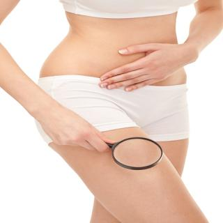 Myths about Cellulite